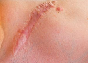 When an Injury Causes Scarring and Disfigurement