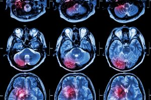 Infrared Red Light Tech Could Detect Infant Brain Injury Earlier